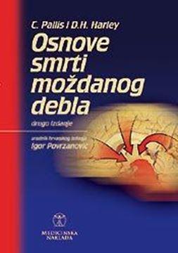 Picture of OSNOVE SMRTI MOŽDANOG DEBLA