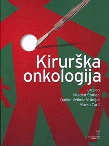 Picture of KIRURŠKA ONKOLOGIJA