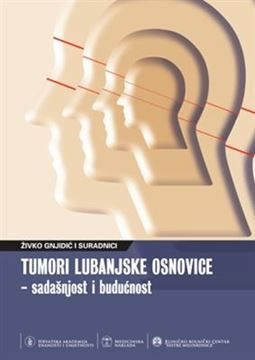 Picture of TUMORI LUBANJSKE OSNOVICE