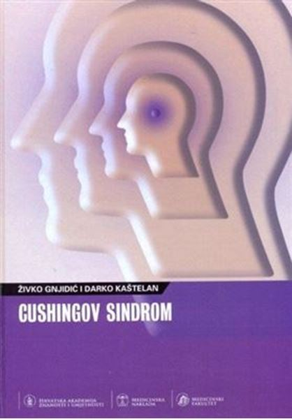 Picture of CUSHINGOV SINDROM