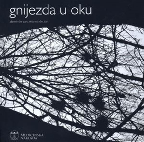 Picture of GNIJEZDA U OKU