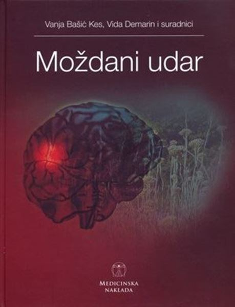 Picture of MOŽDANI UDAR