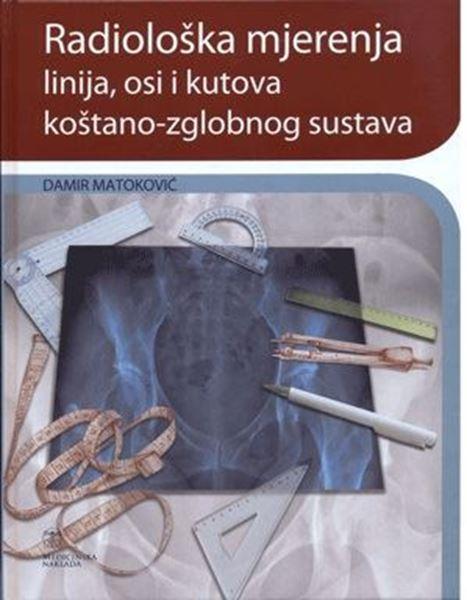 Picture of RADIOLOŠKA MJERENJA LINIJA, OSI I KUTOVA KOŠTANO-ZGLOBNOG SUSTAVA