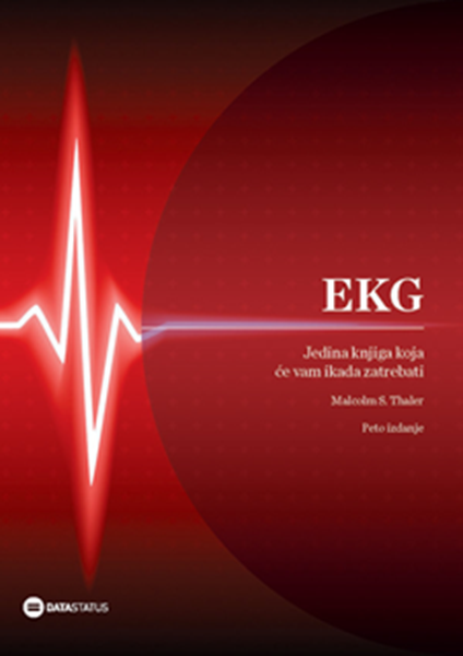Picture of EKG