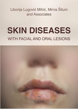Picture of SKIN DISEASES