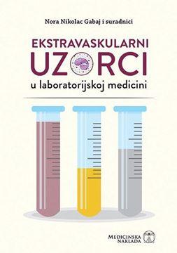 Picture of Ekstravaskularni uzorci u laboratorijskoj medicini
